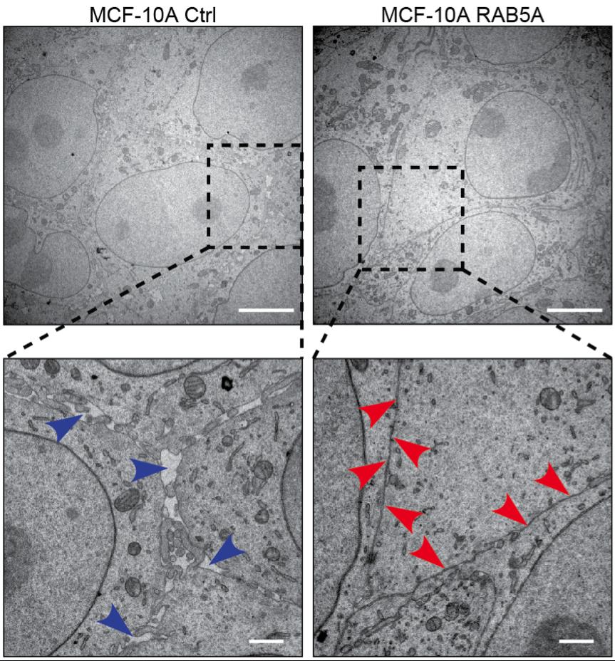 Impatto della proteina RAB5A sulla organizzazione delle giunzioni tra cellule