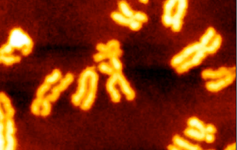 strategies for spatiotemporal regeneration Spatio-temporal dynamics of fructan metabolism in developing barley grains manuela peukert, johannes thiel, darin peshev, winfriede weschke,.